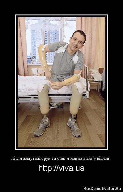 Після ампутацій рук та стоп я майже впав у відчай. - http://viva.ua Але потім, завдяки підтримці родини та інших військових, які також втратили кінцівки, я виробив оптимальний для себе варіант реабілітації. Зі мною займалися лікарі, я знав, що будуть фантомні болі (болі в ампутованих кінцівках. – Ред.) і що це треба побороти без наркотичних медикаментів, я дивився тільки мультики, читав книжки із позитивним сюжетом і, звісно, працював над собою.Марафон Влітку 2015 року я поїхав на реабілітацію до США. Пройшло чотири місяці після ампутації, і я вже ходив на протезах. Для кожного бійця період реабілітації визначається індивідуально. У моєму випадку це було вісім місяців. Ми були на спеціальній базі недалеко від Вашингтона. Я бачив там американських військових, бачив, як вони живуть після ампутацій активним життям і навіть бігають марафони. Пробігти й собі марафон стало моєю метою, однак досягнути її виявилося важче, ніж я розраховував. Вперше я побіг на звичайних протезах. Це було у спортзалі на нашій базі. Під час занять волонтери вирішили витерти мені піт з чола, а я не дався і якось інстинктивно побіг від них. Це було неймовірне відчуття – ти біжиш і ти живий!